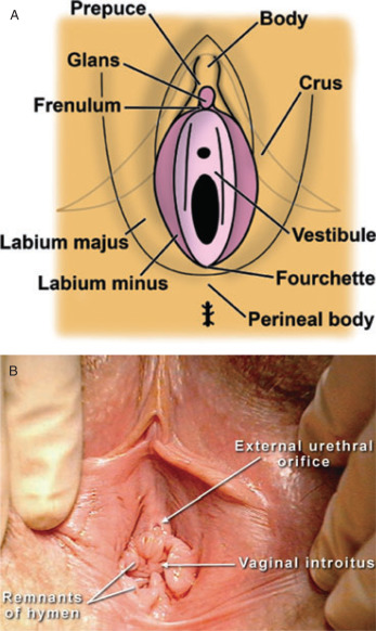 Normal vaginal anatomy pictures