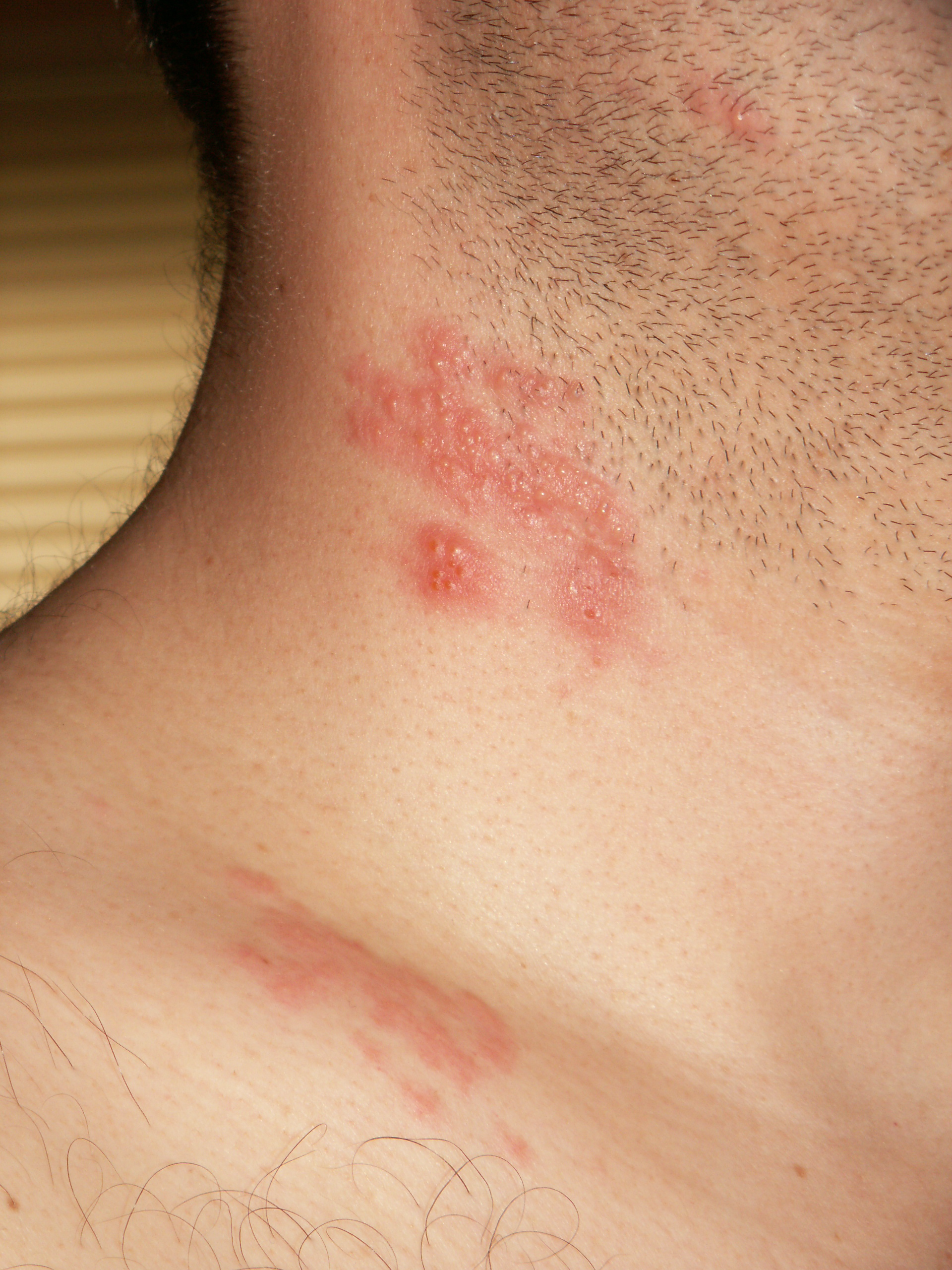 Recurrent shingles in adults