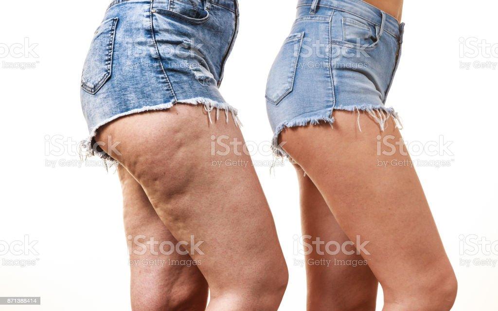 Bad cellulite on legs