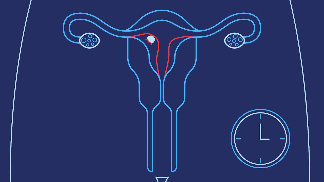 Sperm travel distance to the egg