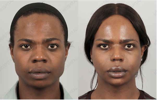 Facial feminization in the united states