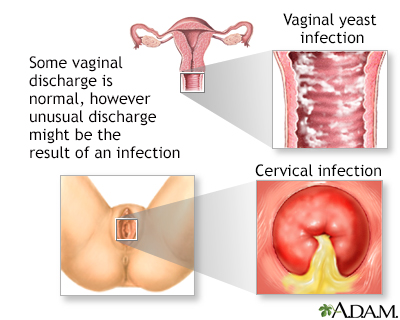 Itching inside vagina and troat
