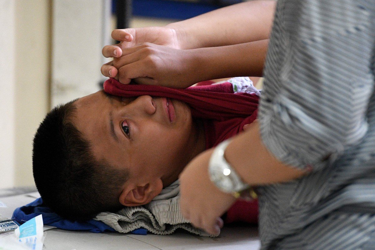 Circumcision for adults in singapore