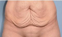 Sagging vagina since losing weight