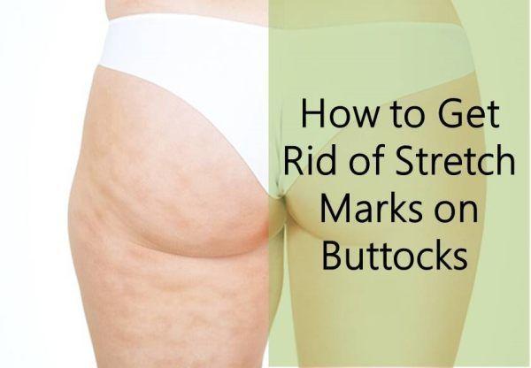 Stretch marks moms bikini ass xxx
