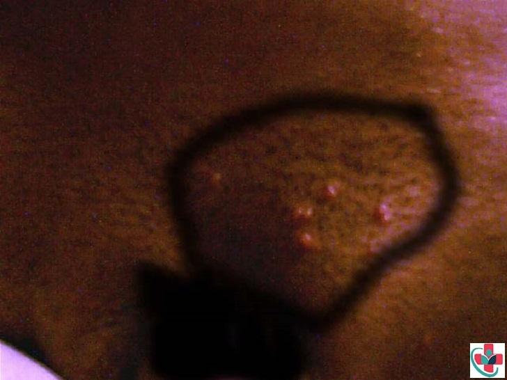 A bump on the vagina