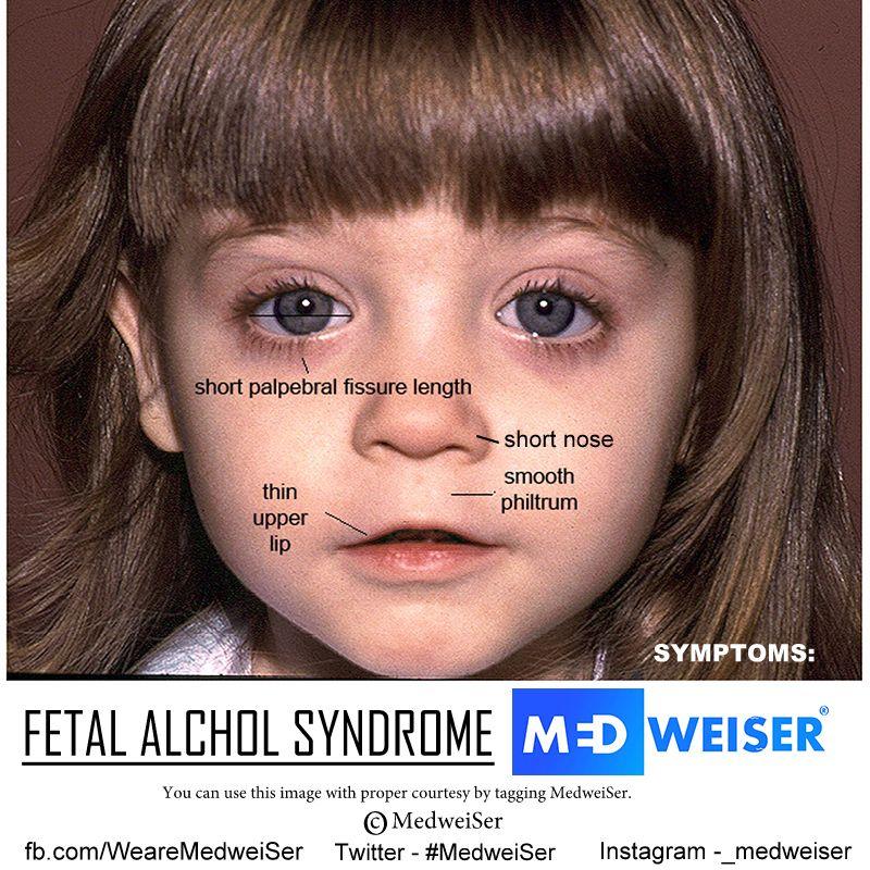Fetal alcohol syndrome face