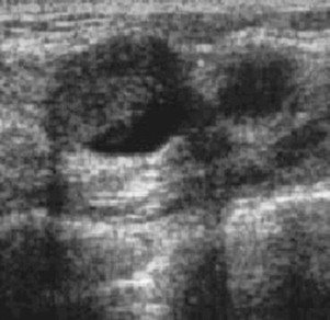 Complex cysts in the breast