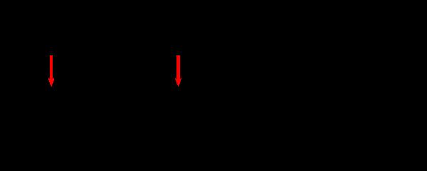 Adrenal dysfunction breast hypoplasia