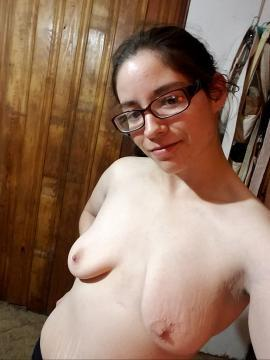Tits with stretch marks nude
