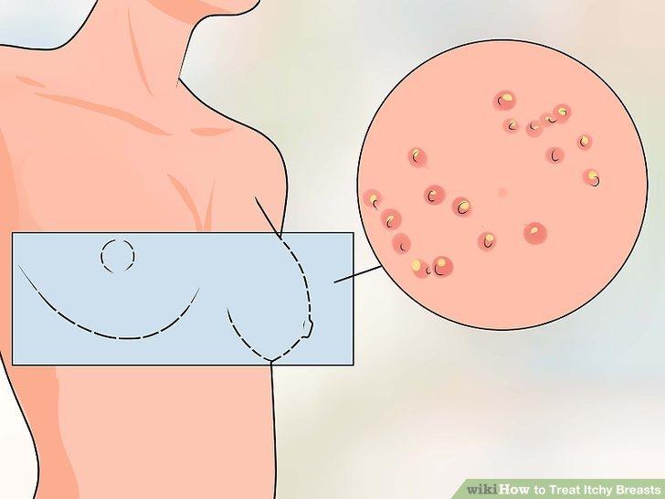 Broken skin under breasts