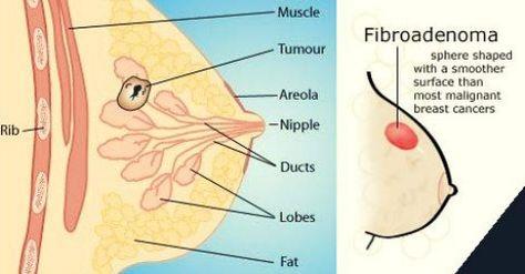 Shape of breast fibroids
